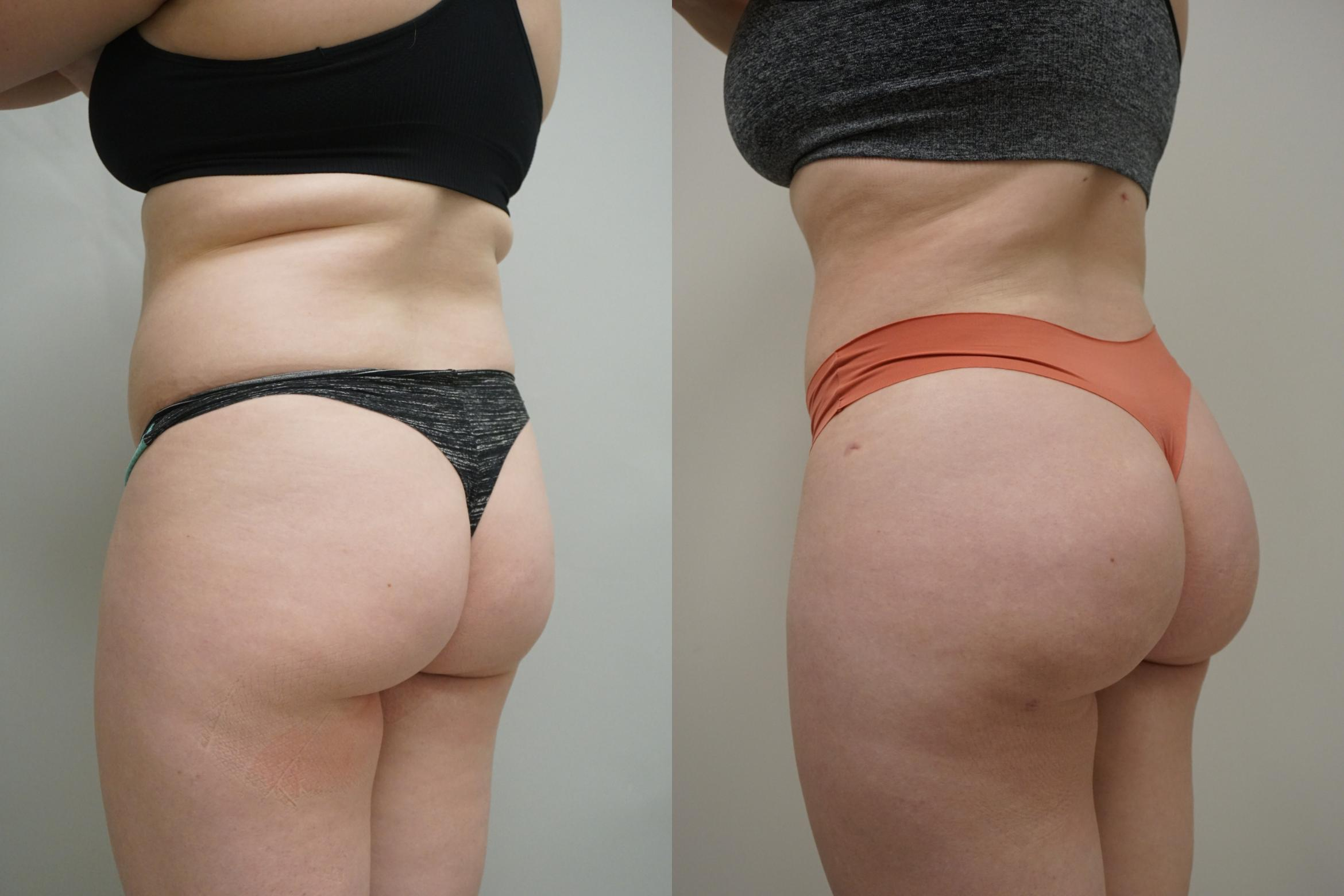 Buttock Augmentation Case 296 Before & After Left Oblique | Gilbert, AZ | Dr. Josh Olson: Advanced Plastic Surgery Institute