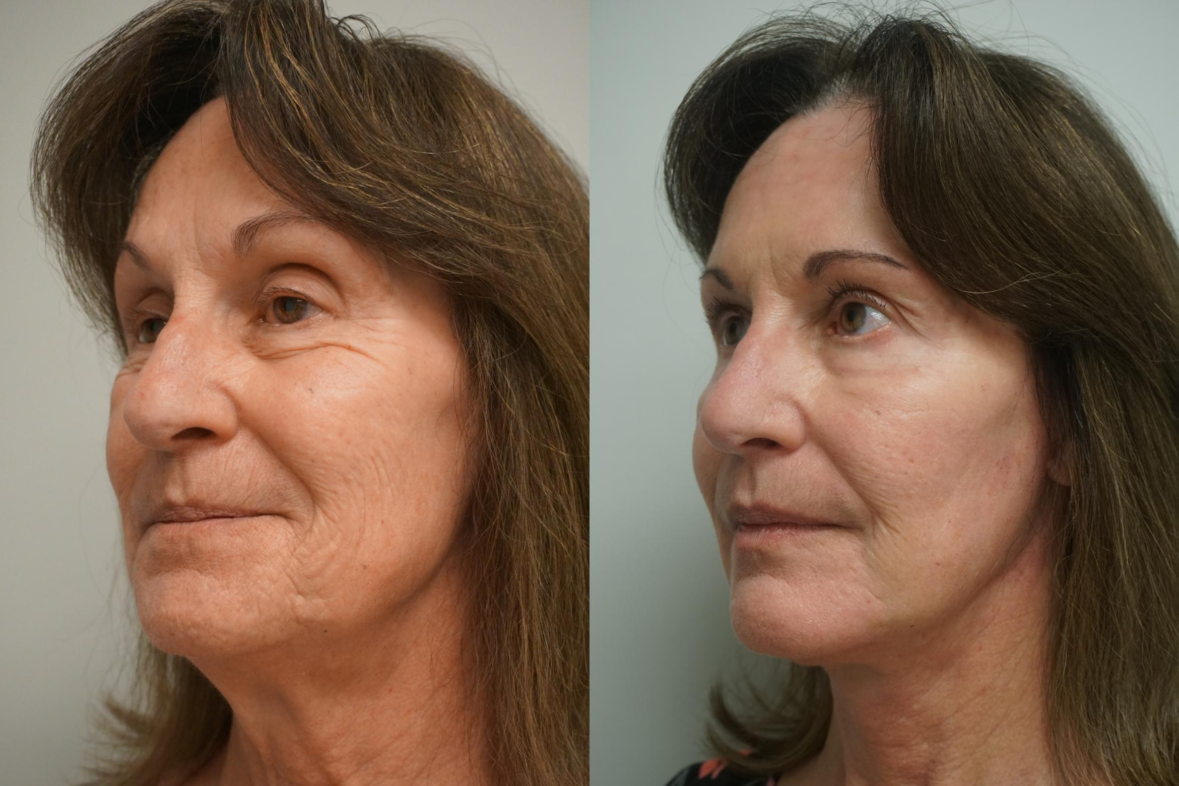 Facelift Case 299 Before & After Right Side | Gilbert, AZ | Dr. Josh Olson: Advanced Plastic Surgery Institute
