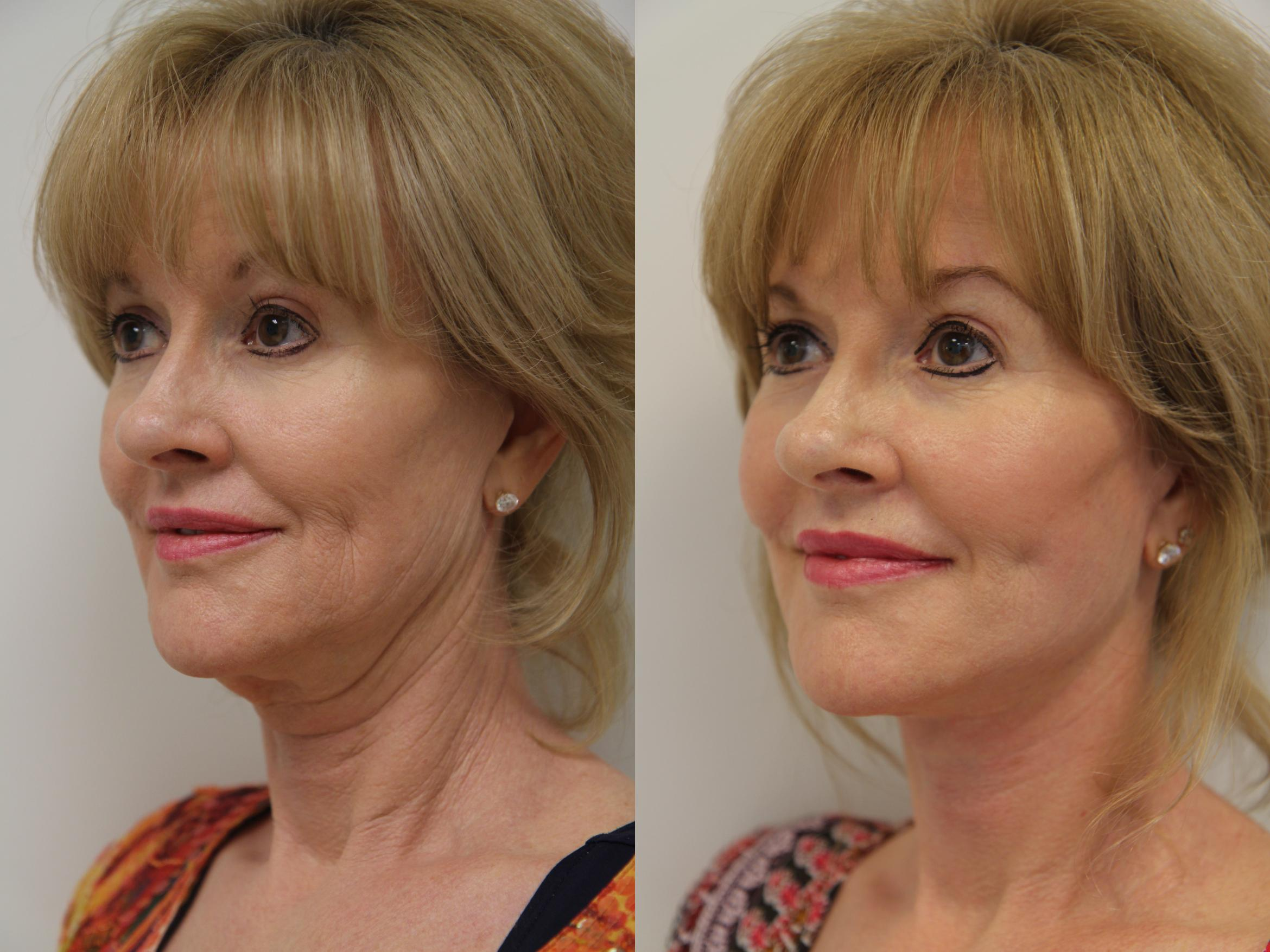 Facelift Case 94 Before & After View #1 | Gilbert, AZ | Dr. Josh Olson: Advanced Plastic Surgery Institute