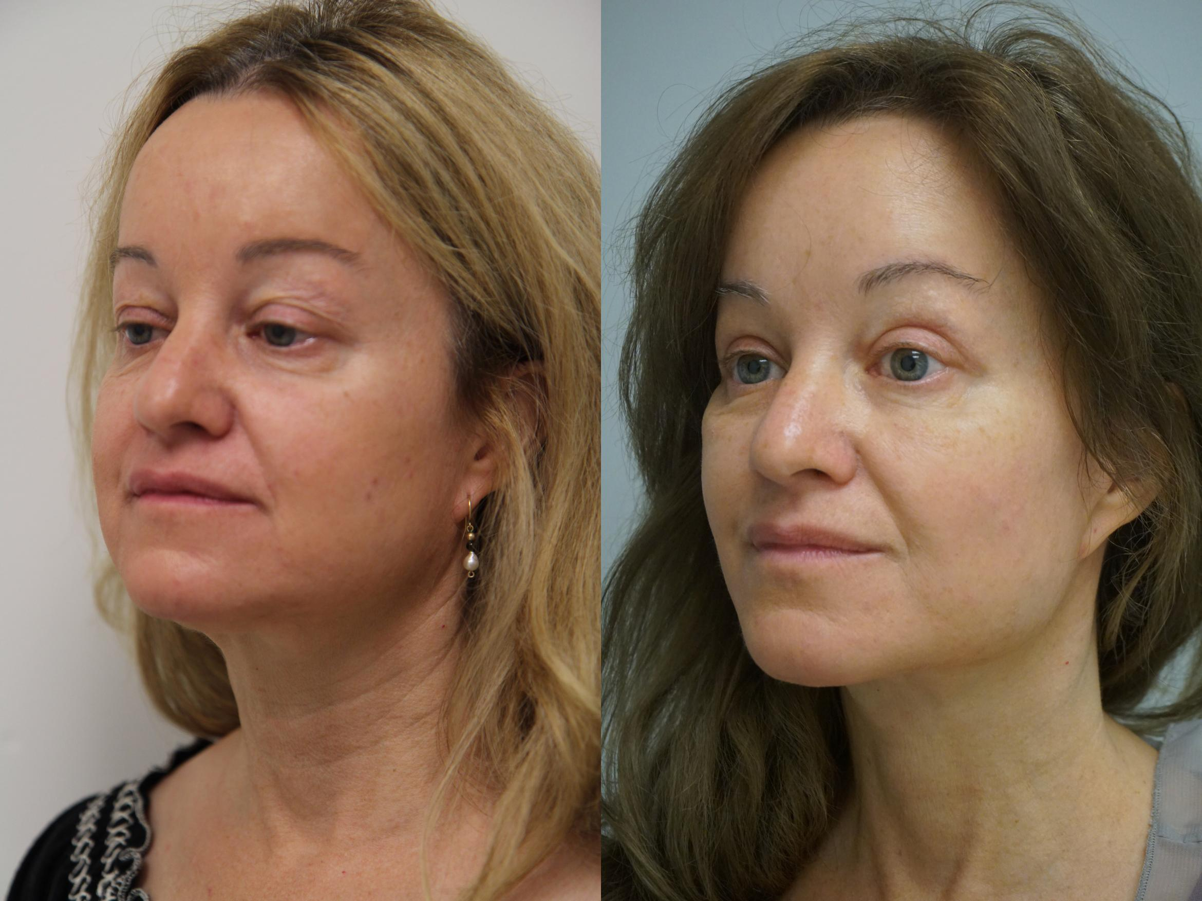 Facelift Case 96 Before & After View #1 | Gilbert, AZ | Dr. Josh Olson: Advanced Plastic Surgery Institute