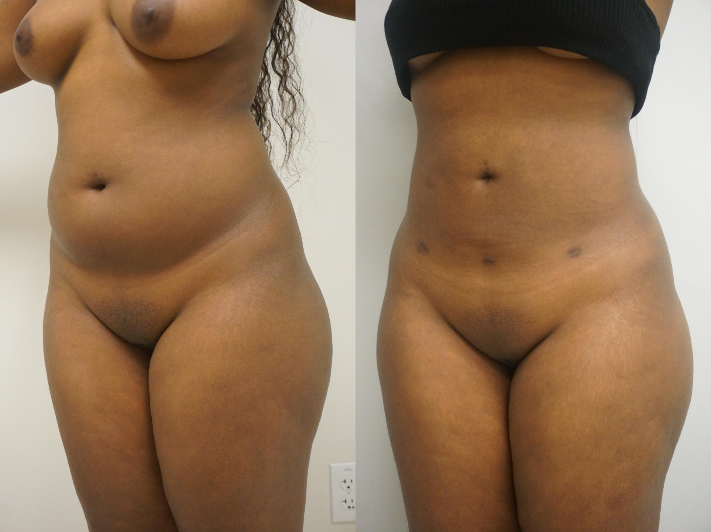 Liposuction For Gilbert Chandler Az Advanced Plastic Surgery Institute