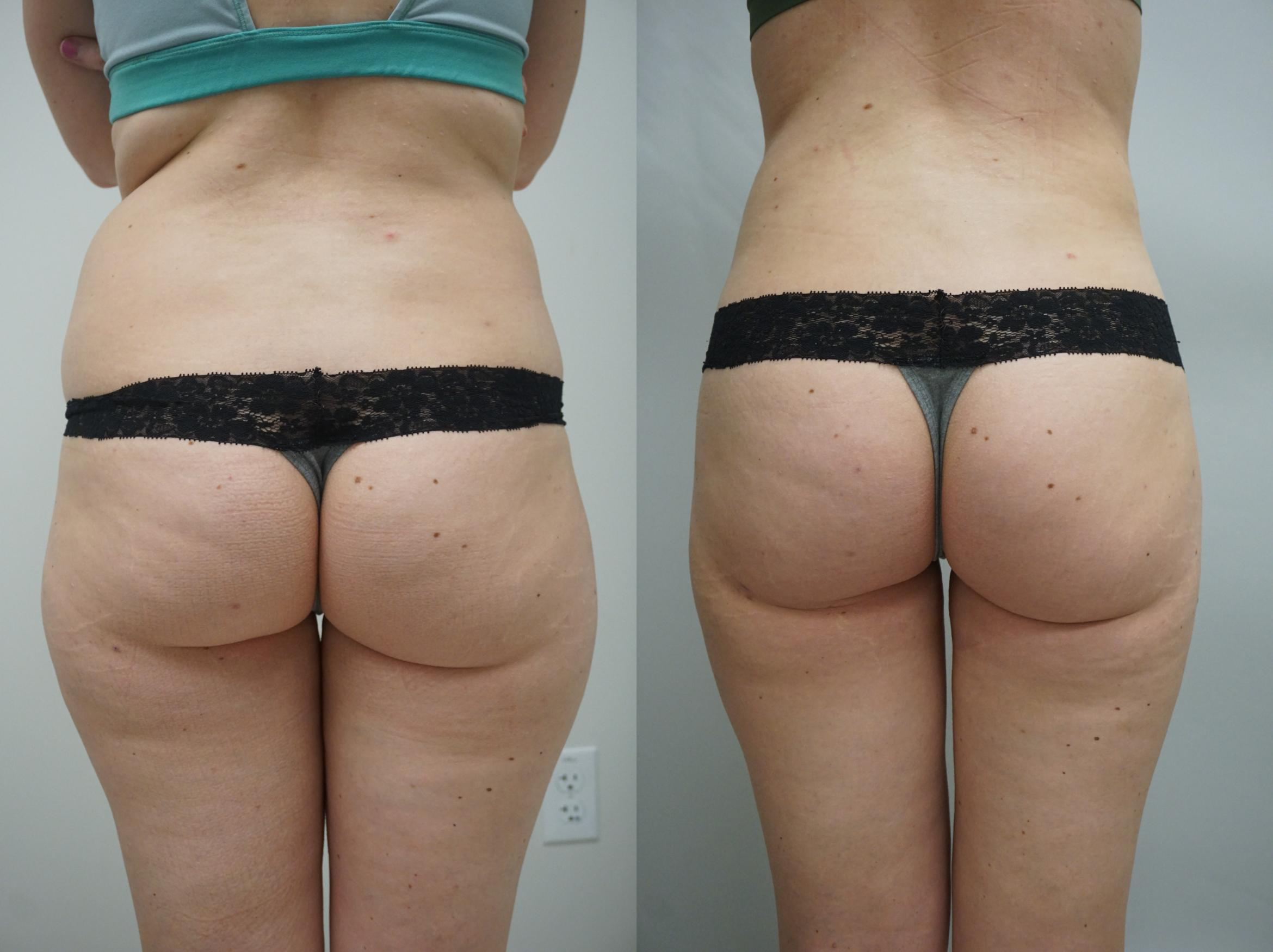 Liposuction Case 266 Before & After View #1 | Gilbert, AZ | Dr. Josh Olson: Advanced Plastic Surgery Institute
