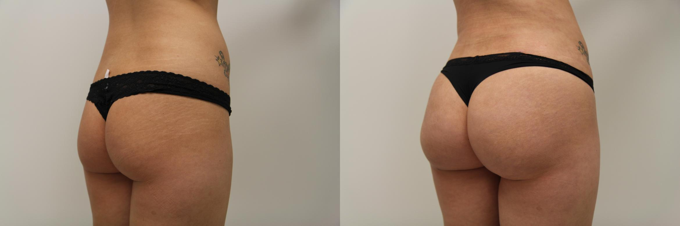 Liposuction Case 87 Before & After View #2 | Gilbert, AZ | Dr. Josh Olson: Advanced Plastic Surgery Institute
