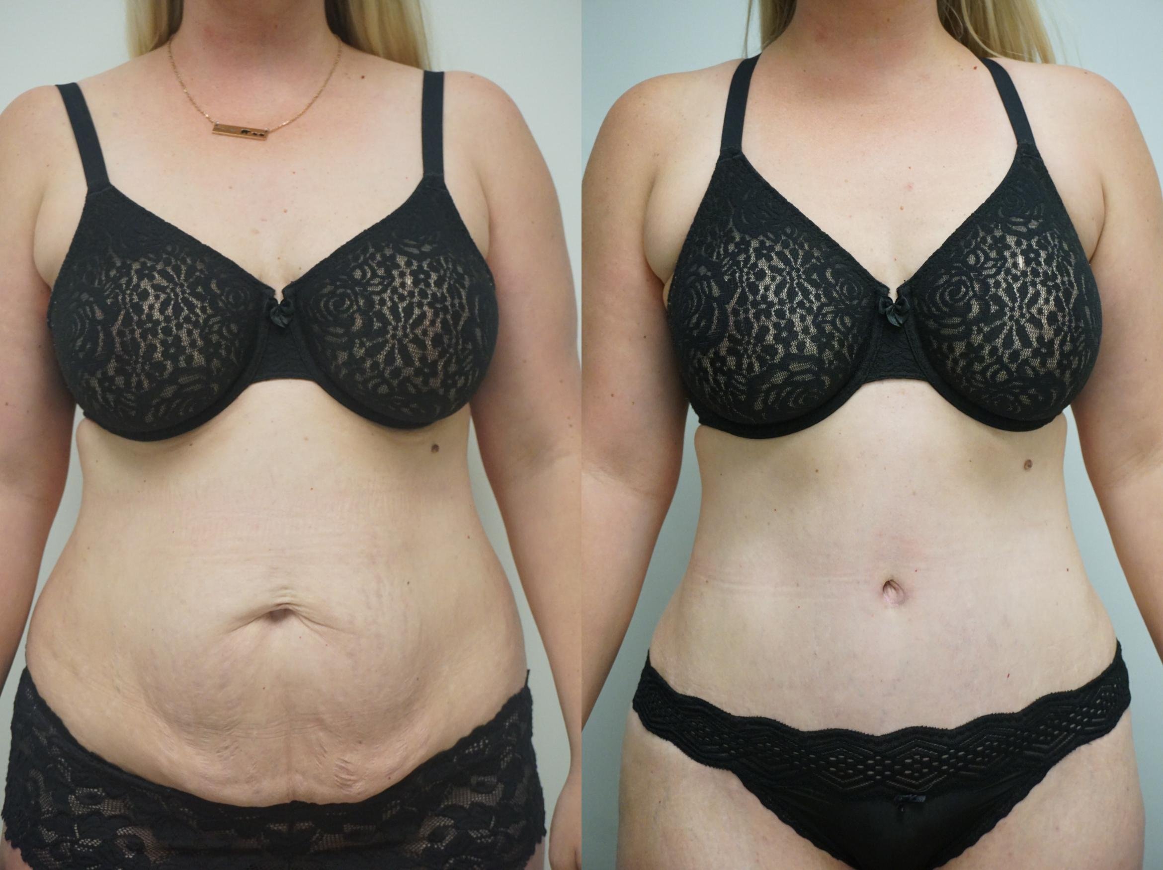 Tummy Tuck (Abdominoplasty) Case 256 Before & After View #1 | Gilbert, AZ | Dr. Josh Olson: Advanced Plastic Surgery Institute