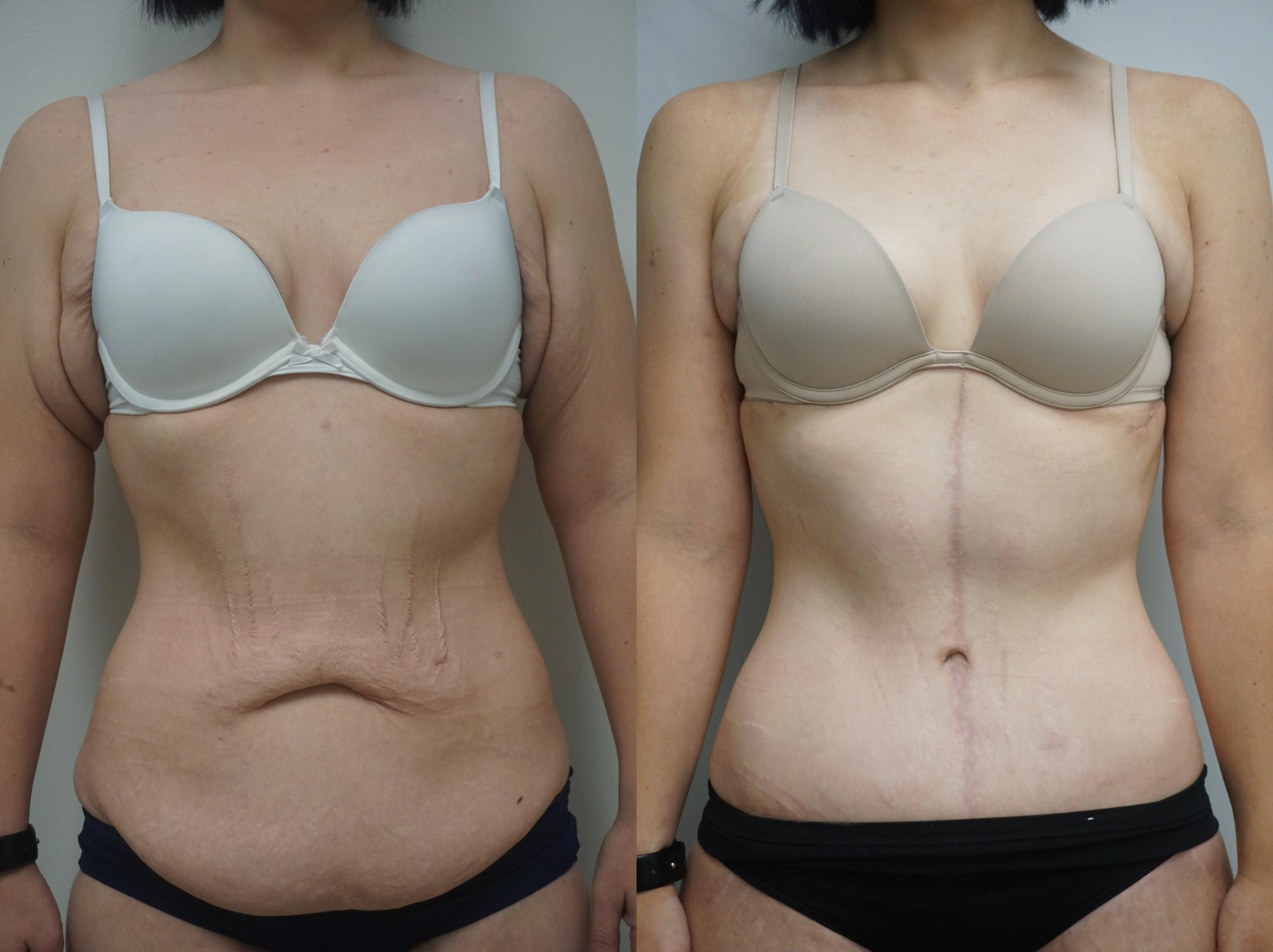Tummy Tuck (Abdominoplasty) Case 273 Before & After View #1 | Gilbert, AZ | Dr. Josh Olson: Advanced Plastic Surgery Institute