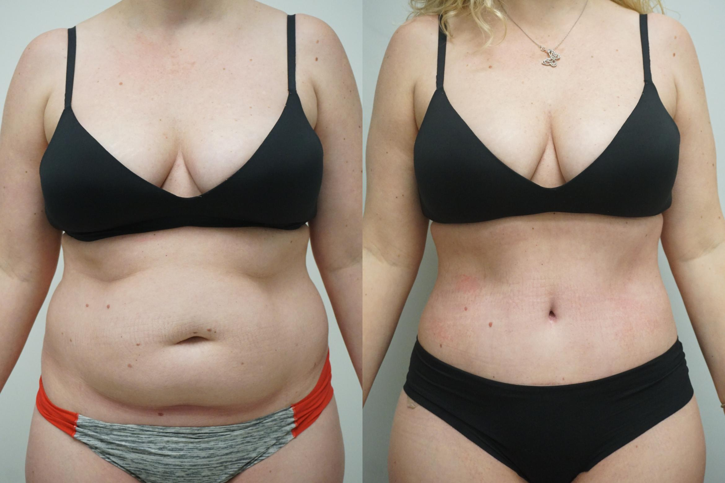 Tummy Tuck (Abdominoplasty) Case 293 Before & After Front | Gilbert, AZ | Dr. Josh Olson: Advanced Plastic Surgery Institute