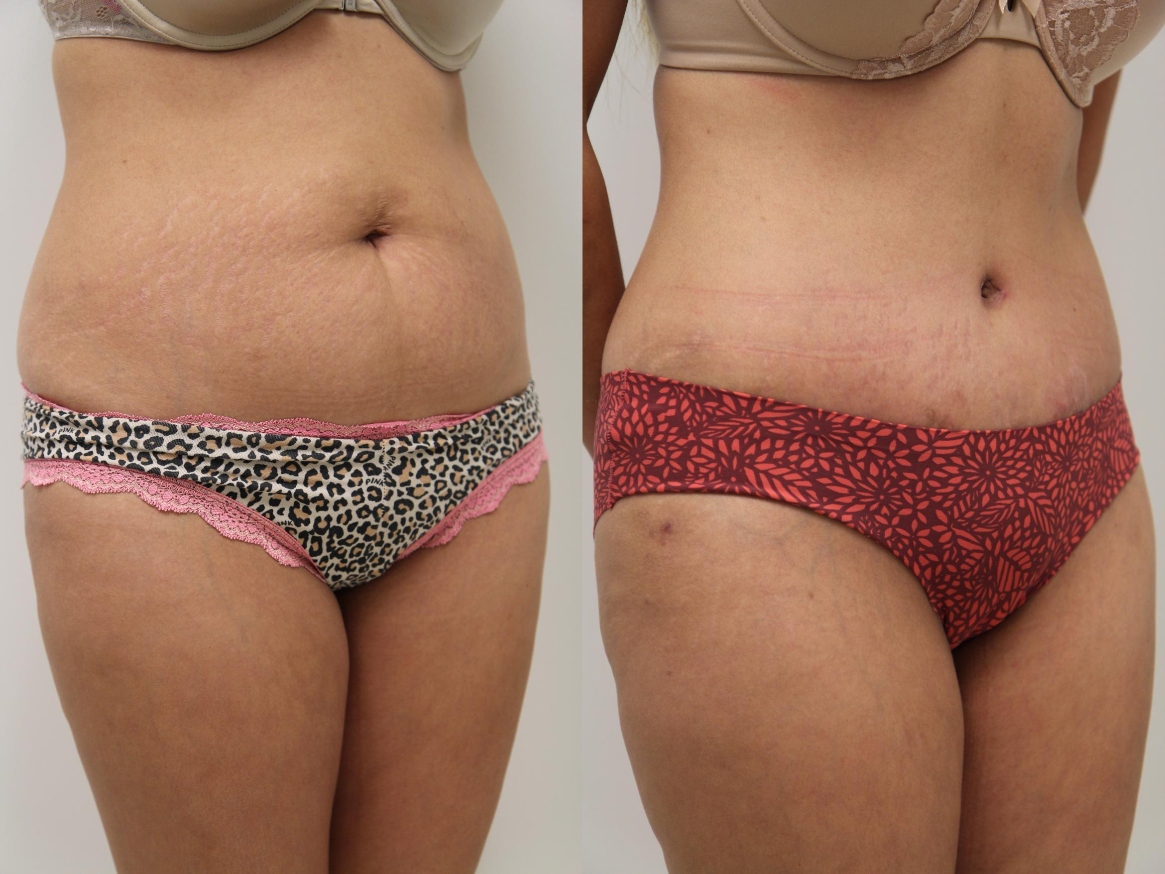 Tummy Tuck (Abdominoplasty) Case 66 Before & After View #2 | Gilbert, AZ | Dr. Josh Olson: Advanced Plastic Surgery Institute