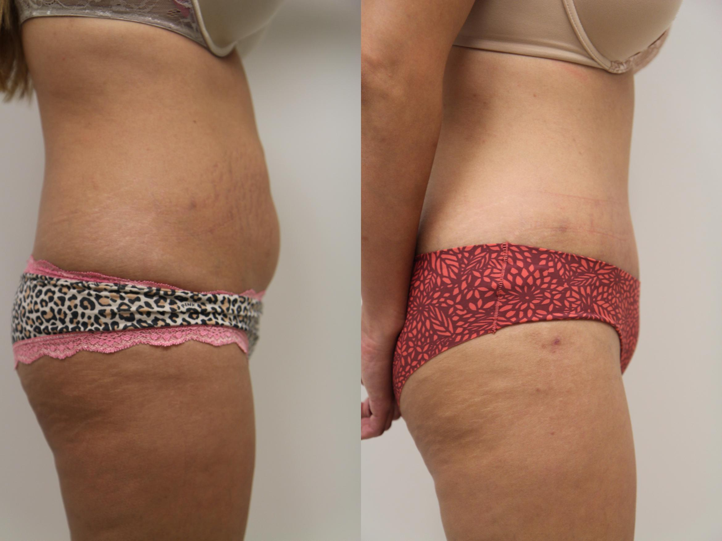 Tummy Tuck (Abdominoplasty) Case 66 Before & After View #3 | Gilbert, AZ | Dr. Josh Olson: Advanced Plastic Surgery Institute